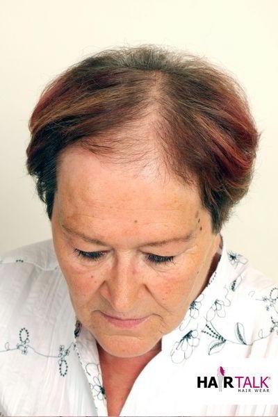 Haarverdichtung vorher
