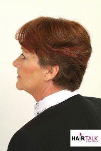Haarverdichtung vorher-nachher